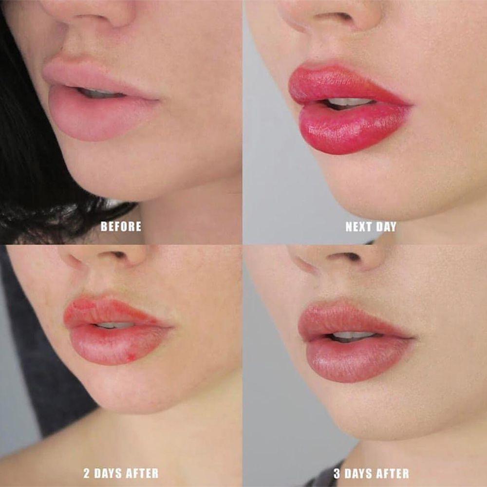 lip blushing timeline after care