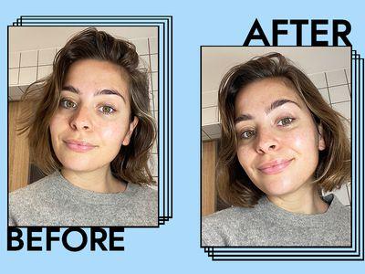 Belif The True Cream Aqua Bomb Results on Emily Algar