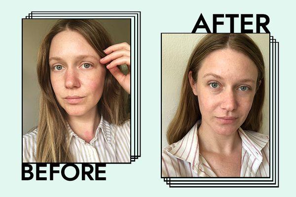 Pond's Dry Skin Cream Results on Nicole Kliest