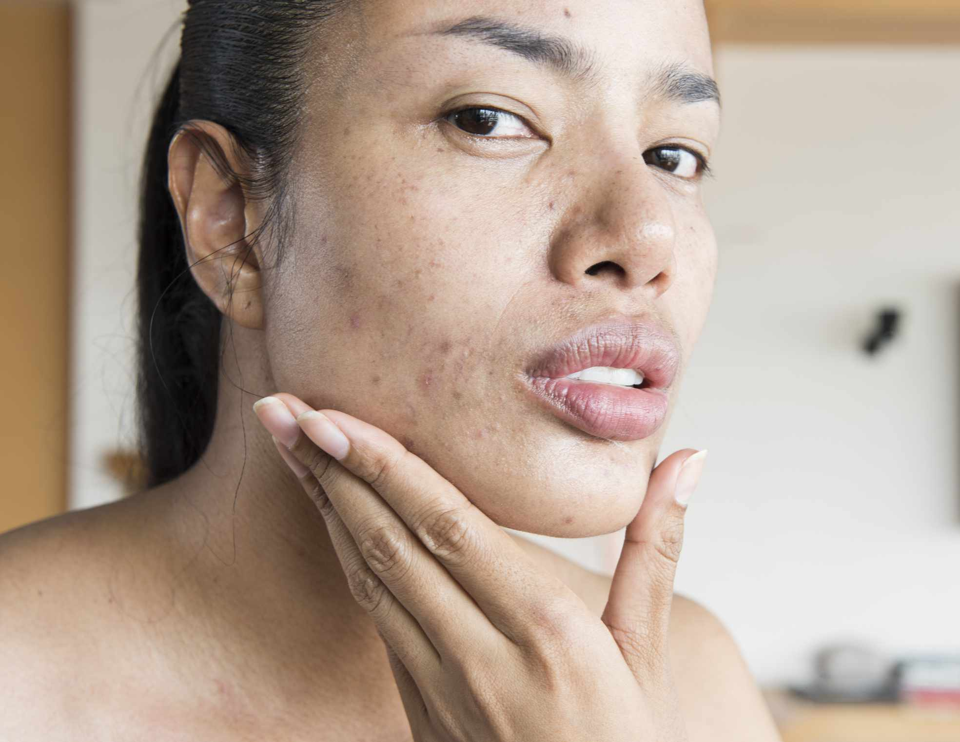 woman with acne scarring