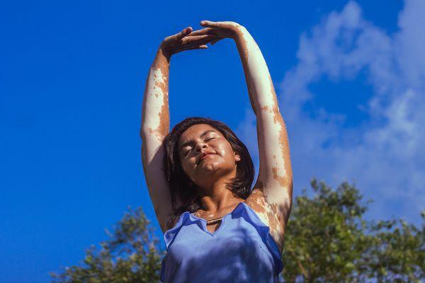 Woman with vitiligo standing in the sun