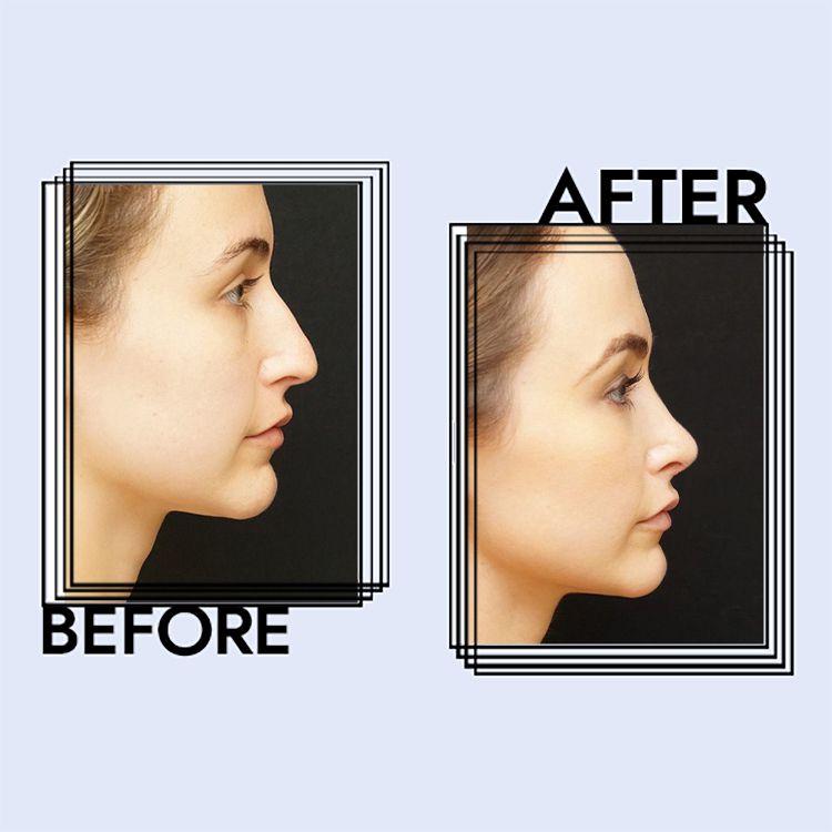 Women on roman nose Aquiline nose