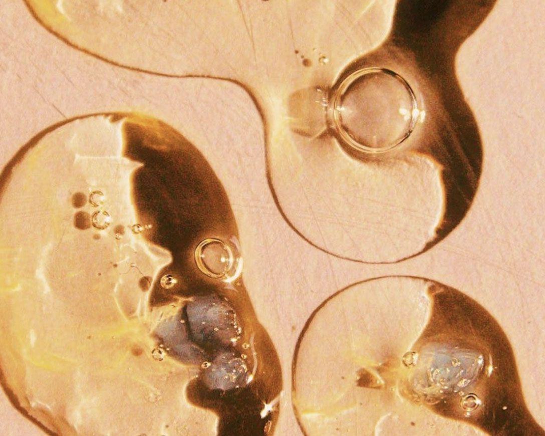 It's True: Mustard Oil Can Help Reverse Hair Loss and Dandruff