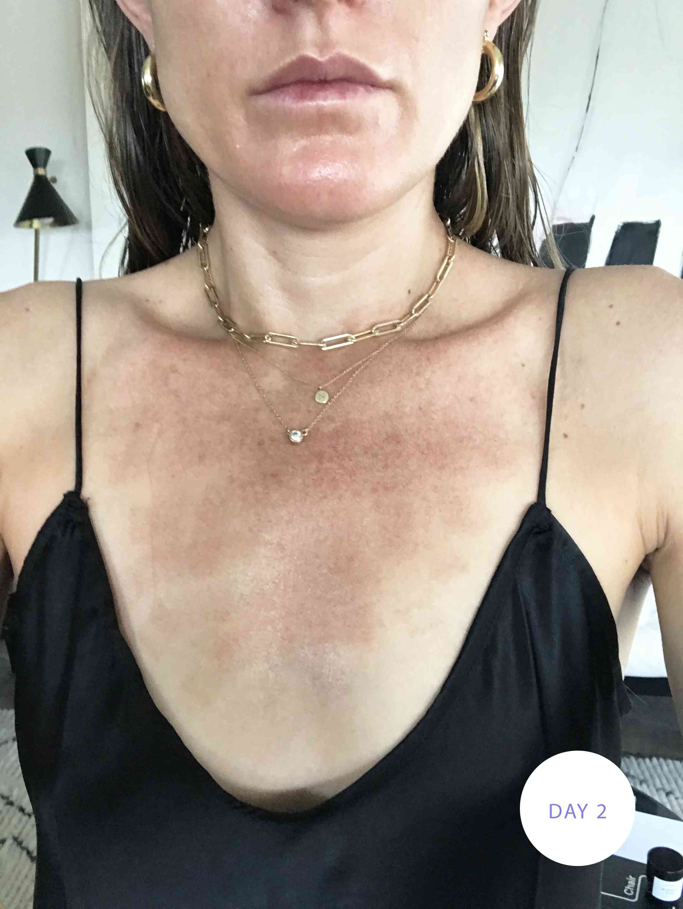 Day two after a Fraxel treatment