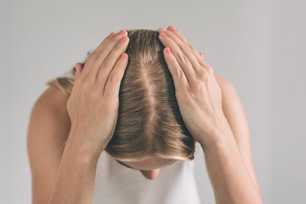 woman touching scalp