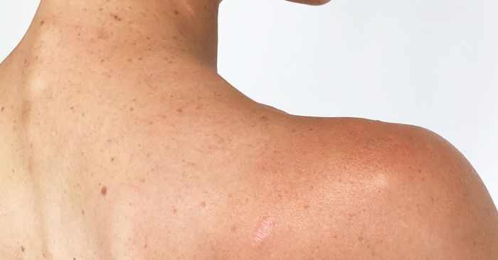 This Is What a Melanoma Scar Looks Like