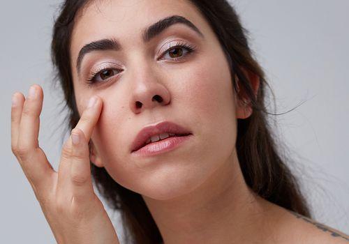 prescription acne