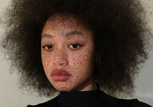 model with freckles