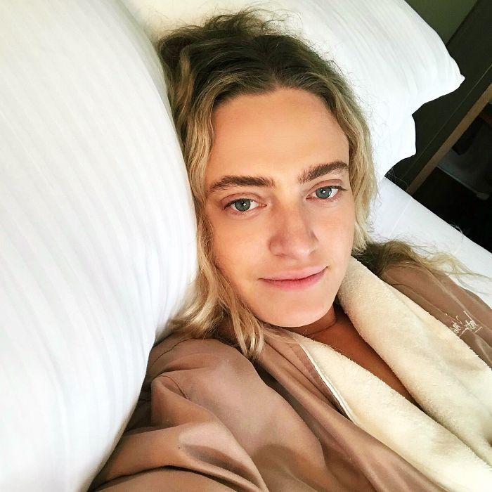 how to prevent sleep wrinkles