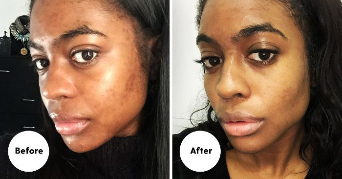 Found: The Best Acid Products to Treat My Dark Spots