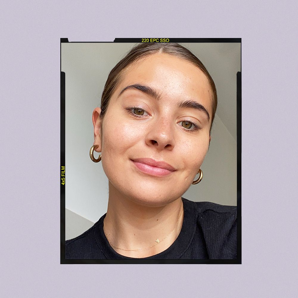U Beauty Super Hydrator Results on Emily Algar