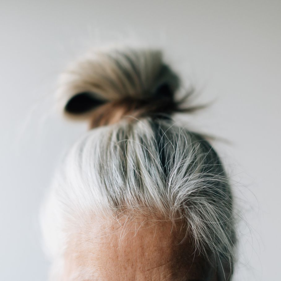 closeup of person's forehead