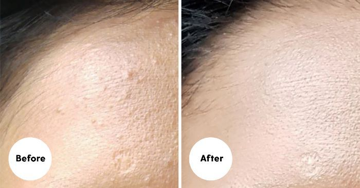 Viral K-Beauty Product Rids Skin of Whiteheads