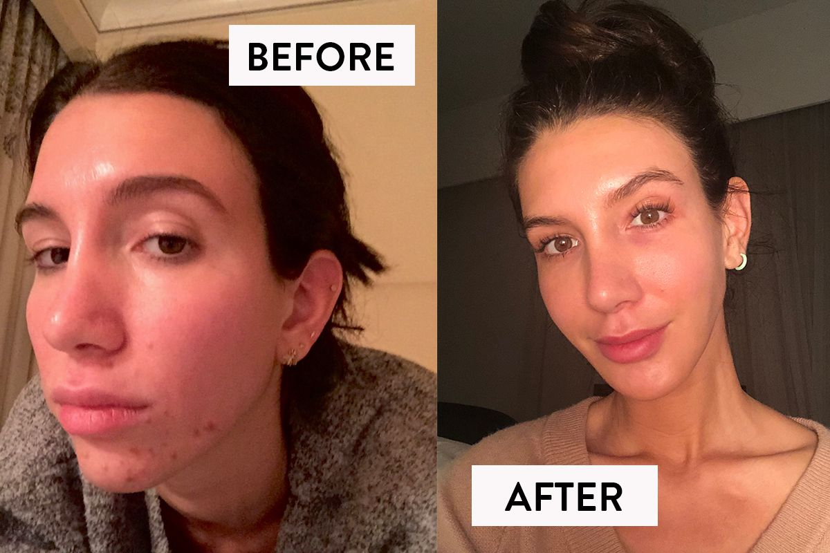 It's True: This Little-Known Supplement Stopped My Hormonal Acne Breakouts For Good