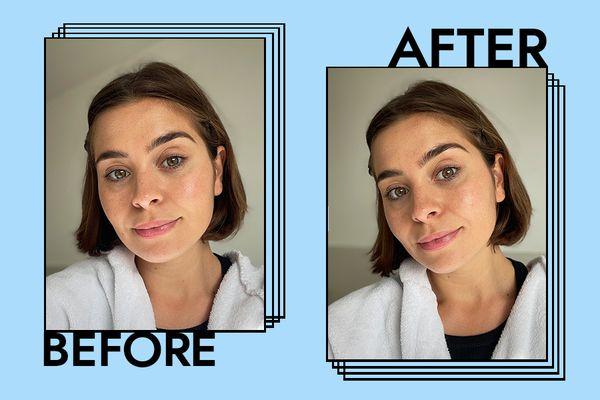 Kate Somerville Goat Milk Moisturizing Cream Results on Emily Algar
