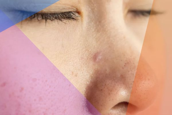 pimple in nose
