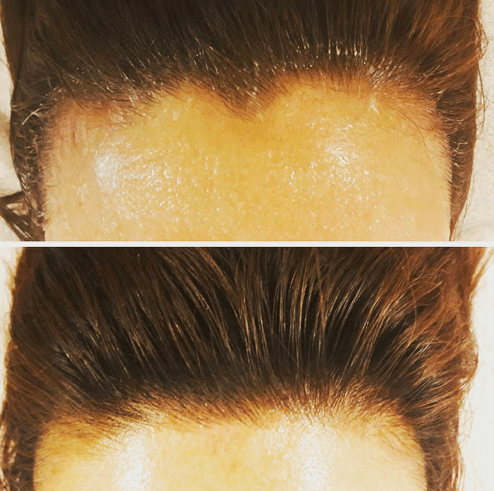 hairline-microblading