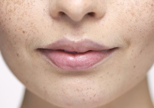 Freckled woman with slight hair around her lips
