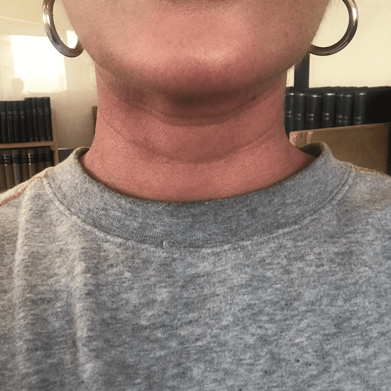 Picture of neck wrinkles