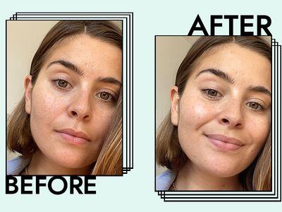 Sturm Eye Cream Before & After