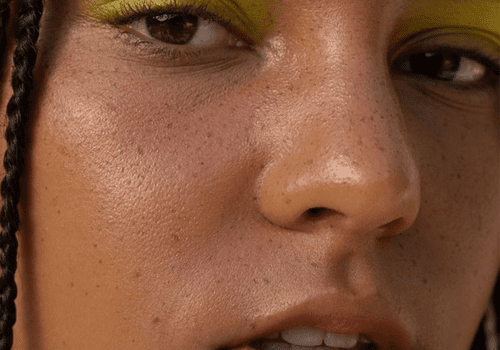 Model with faux freckles