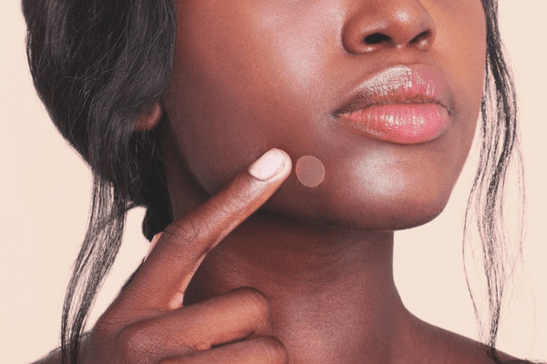 woman wearing pimple patch on lip