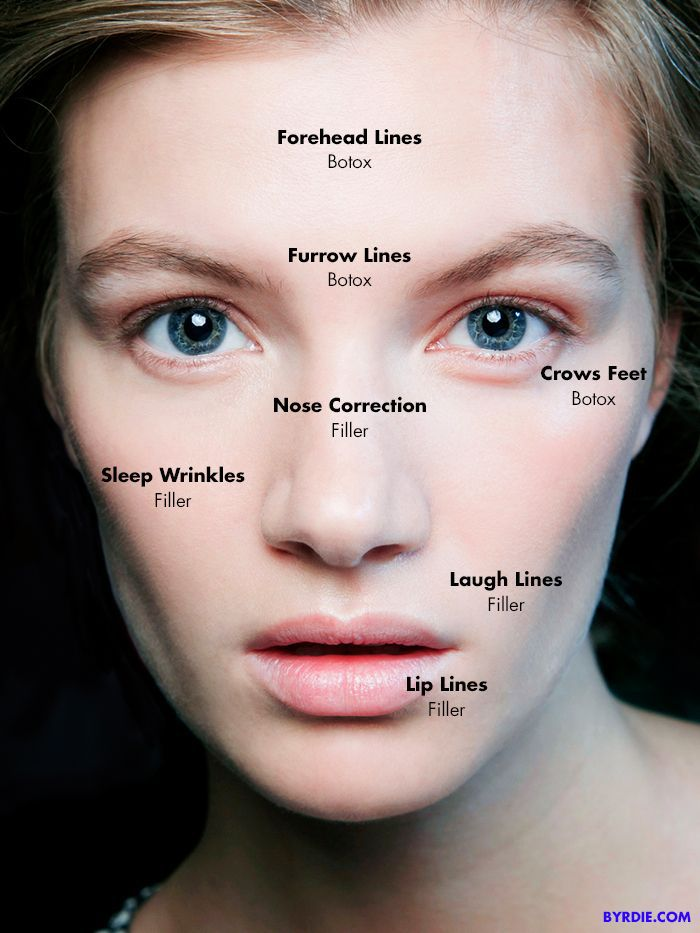 Close-up of woman's face overlayed with injectable annotations