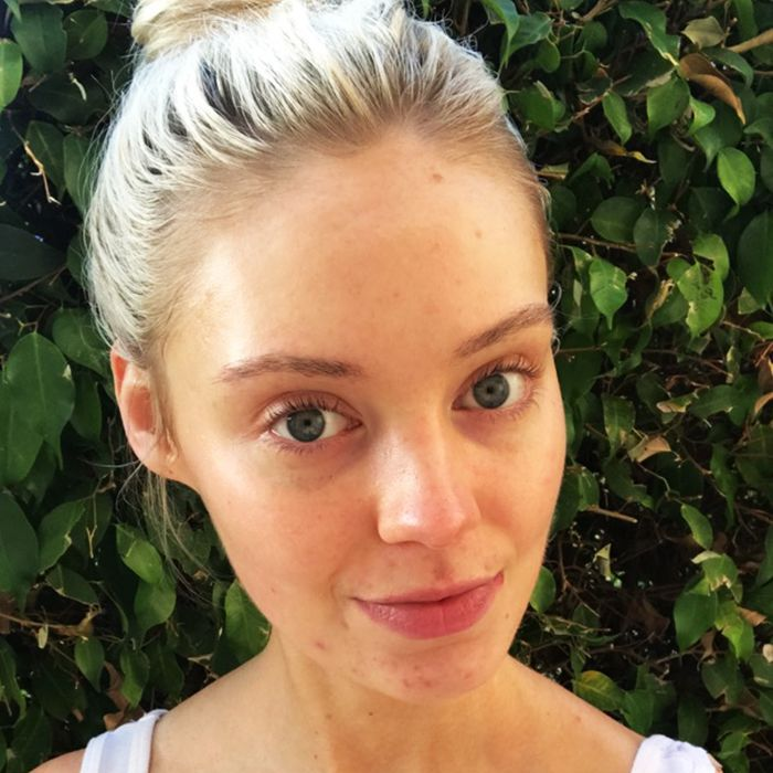 best prescription for acne - blonde woman
