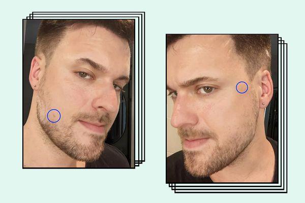 Derma E Scar Gel Results on Adam Hurly