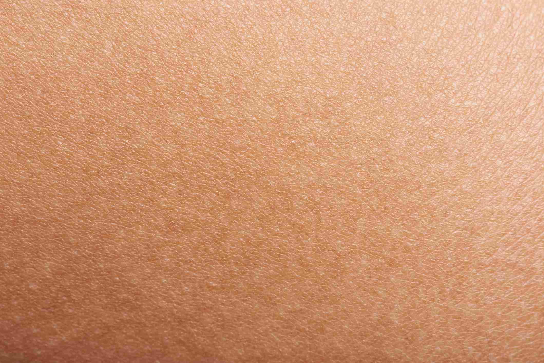 White Spots on Skin: Idiopathic Guttate Hypomelanosis