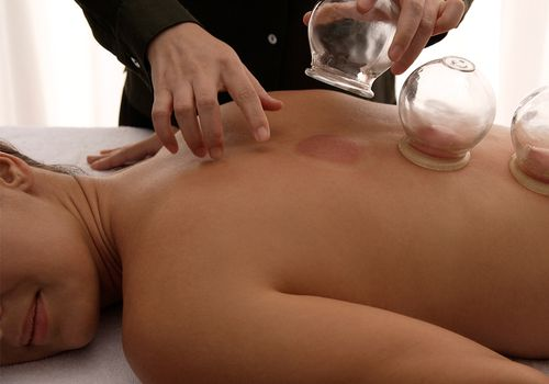 cupping removal