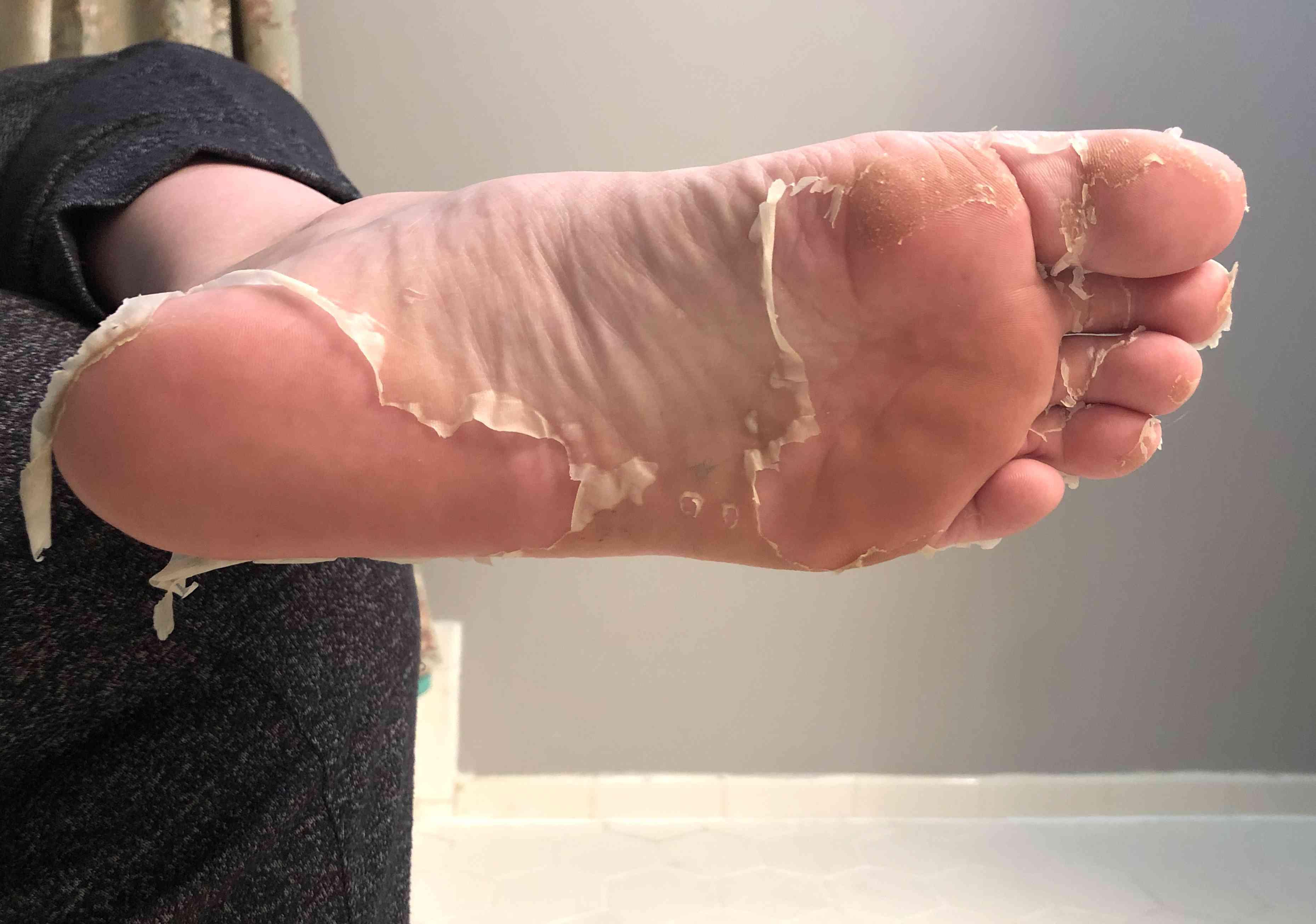 Baby Foot Peeling Skin