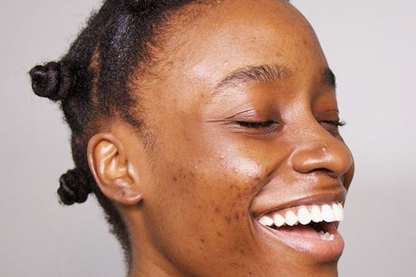 woman with protective hairstyle